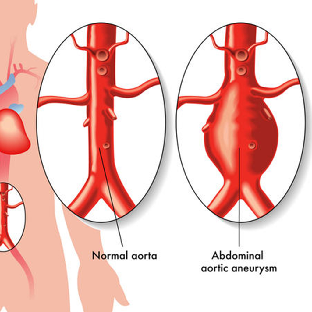 abdominal aortic aneurysm screening test