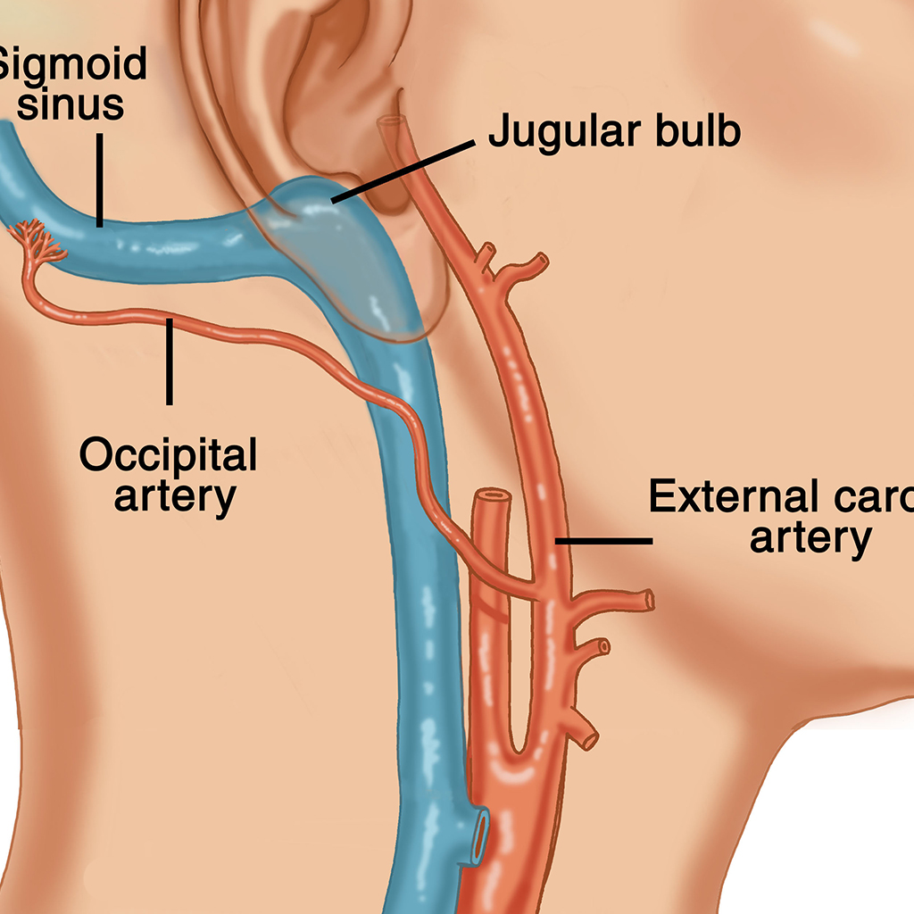 symptoms of carotid artery disease